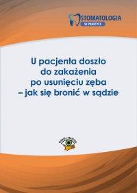 U pacjenta doszło do zakażenia po usunięciu zęba – jak się bronić w sądzie - Katarzyna Włodarczyk
