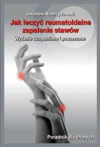 Jak leczyć reumatoidalne zapalenie stawów II - Jarosław Niebrzydowski