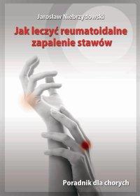 Jak leczyć reumatoidalne zapalenie stawów. Poradnik dla chorych - Jarosław Niebrzydowski