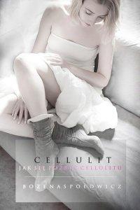 Cellulit. Jak się pozbyć cellulitu - Bożena Społowicz