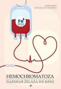 Hemochromatoza. Nadmiar żelaza we krwi - Karina Szota